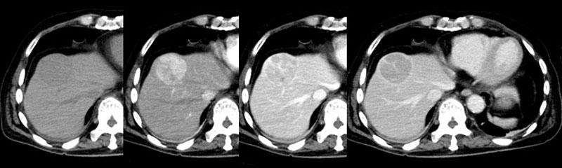 21_radiology_02