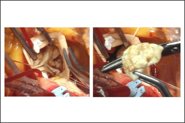 24_aorticstenosis_02