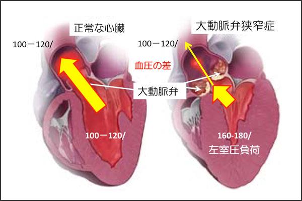 24_aorticstenosis_05