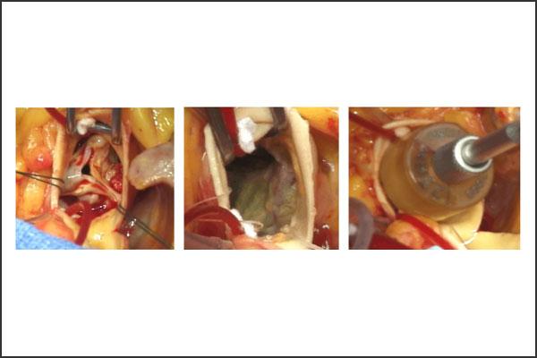 24_aorticstenosis_08