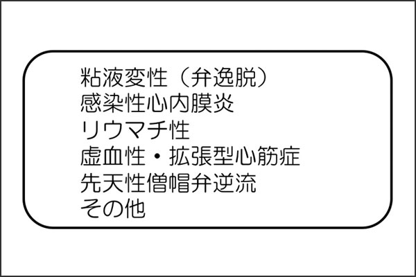 25_mitralregurgitation1_01
