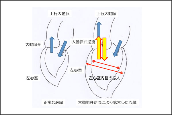 27_aorticregurgitation_02