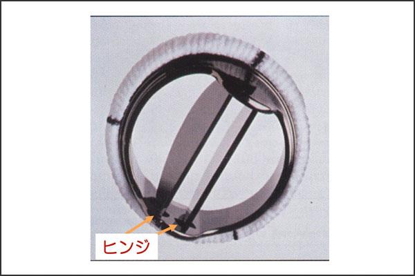 27_aorticregurgitation_08