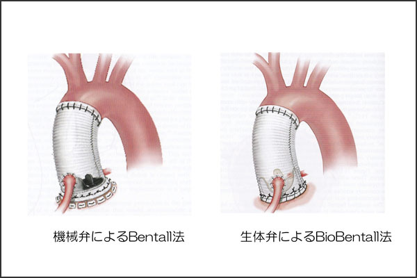27_aorticregurgitation_14