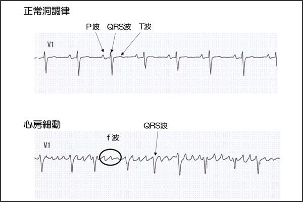 心房細動に対する外科治療 -メイズ手術-