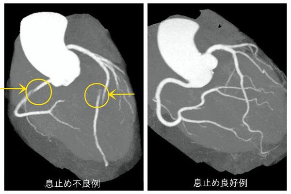 20160413_radiology_02