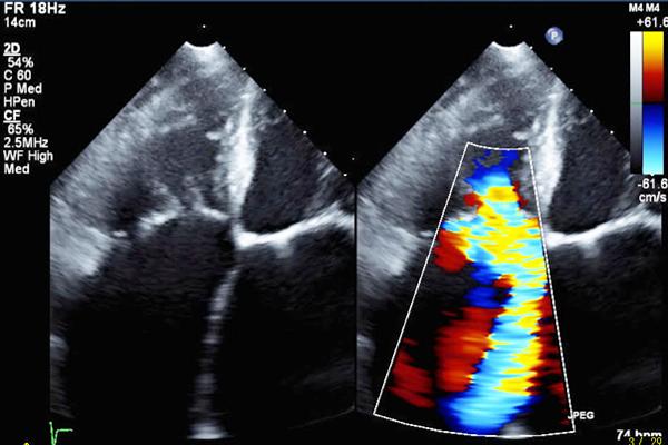 重症三尖弁逆流のカラードプラ画像