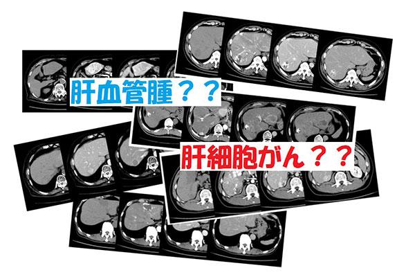 腫瘍 良性 肝臓