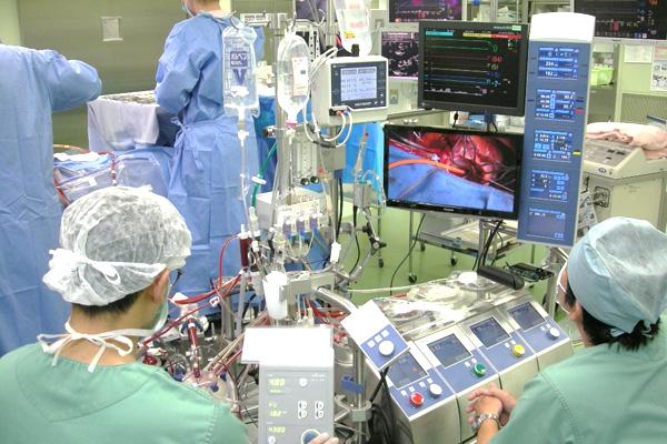 心肺 は 人工 装置 と