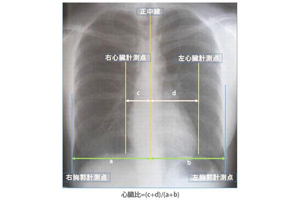 20160415_nursing-dialysis_01